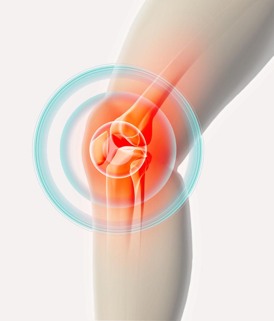 Ultrahang kezelés: Fájdalomcsillapítás tűszúrás nélkül
