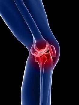 a csípőízület acetabulumának károsodása