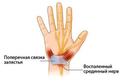 a térd jobb oldali ízületeinek sérülései terápiás gyakorlatok a térd ízületi gyulladás kezelésére