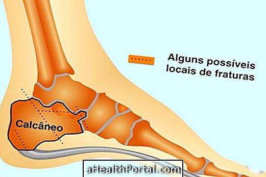 a deréki csigolyák ízületeinek deformáló artrózisa