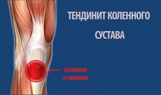 Térdeltérés - Elsősegély és sérülések - 2020