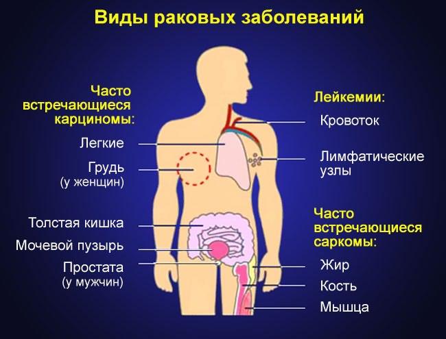 kenőcsök és gélek ízületi fájdalmakhoz fáj a váll-ízület