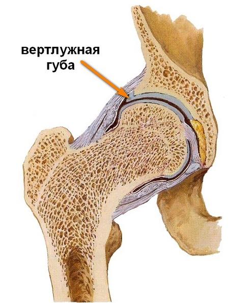 poszttraumás csukló artrózis kezelése hogyan kell kezelni a csípőízület trocharteritist