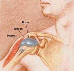 bursitis vagy térd artritisz