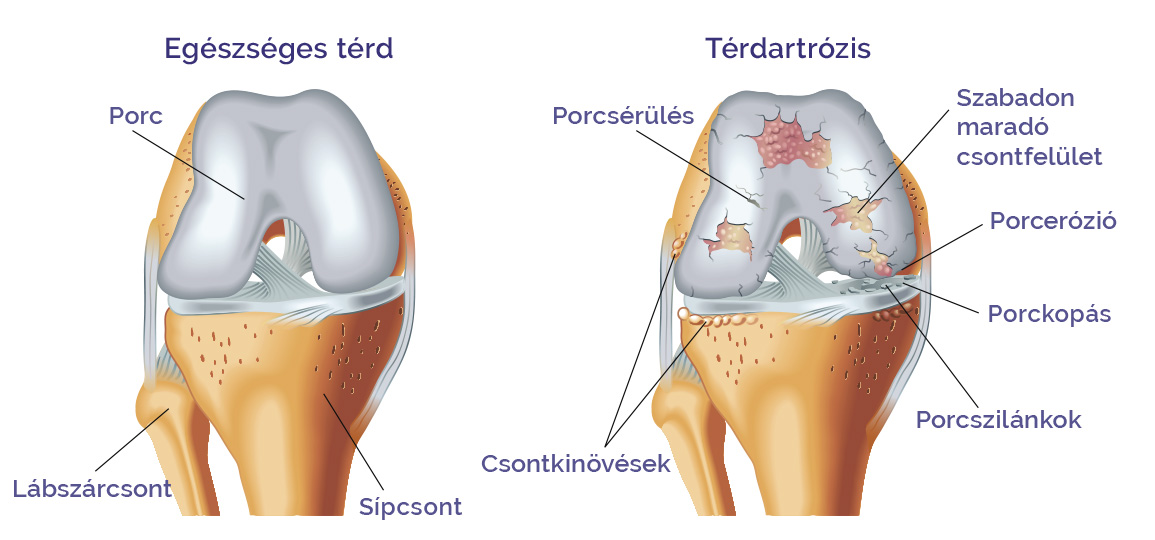 Artrózis, Porckopás tünetei, kezelése ➜ Térd Porckopás