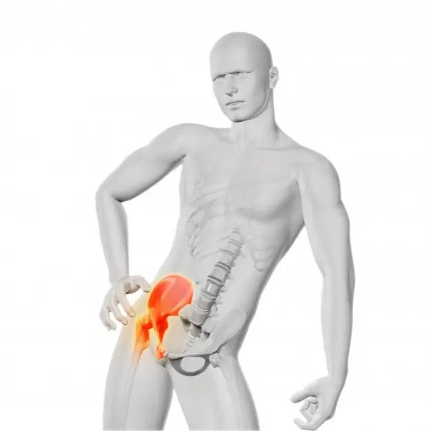 fájdalom a csípőízület séta közben duzzanat a csípőízület artrózisával