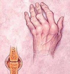 ízületi ízületi deformáció