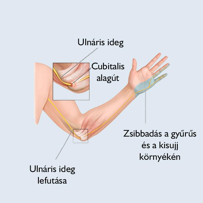 Mi okozhatja a könyök fájdalmát? - fájdalomportáagnisoma.hu