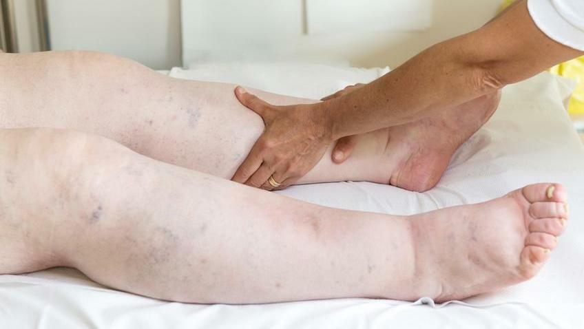 természetes gyógymódok duzzadt láb