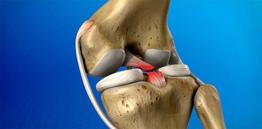 Kineziológiai tapasz bokára akut sérülés vagy boka instabilitás esetén