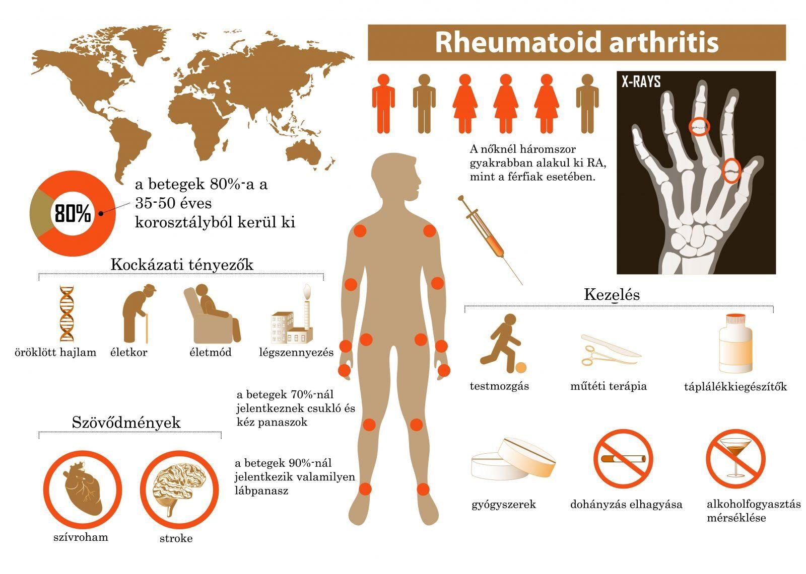 artritisz csukló kezelés