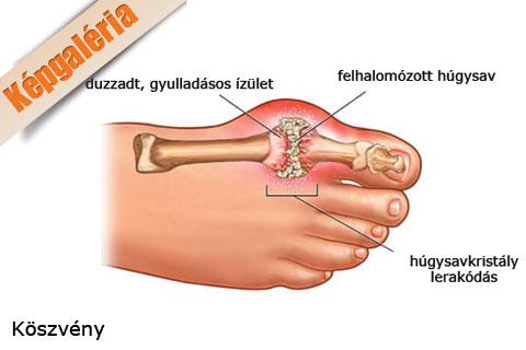 nagy lábujj ízület kezelése
