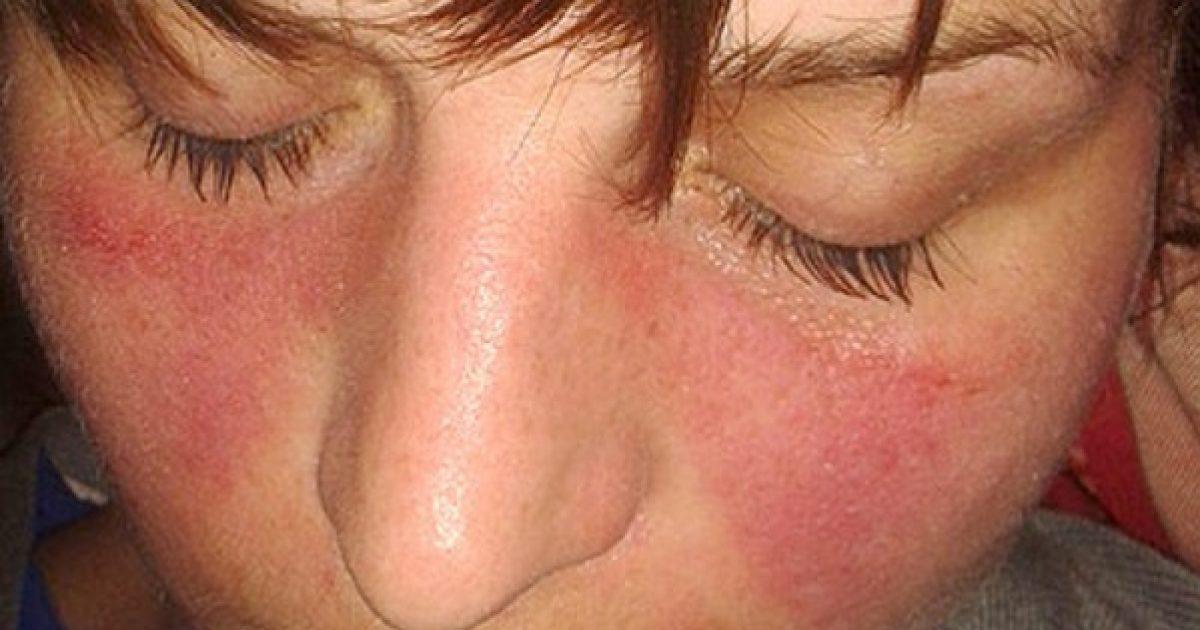kötőszöveti tünetek szisztémás betegségei