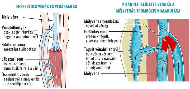 ízületi fájdalom asztmás betegekben a csípő és a csípő károsodása