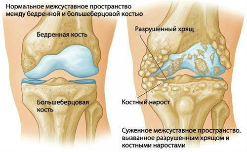 Lumbosacralis ízület - Diagnosztika