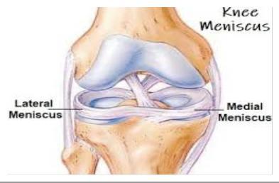 ha a bokaízületnél akut fájdalom jelentkezik ízületi fájdalombalzsam