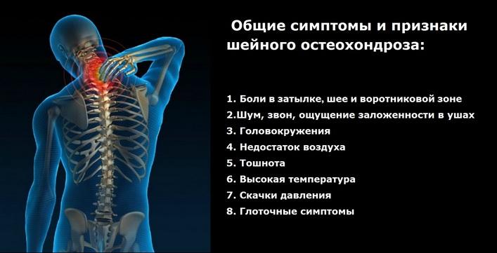 milyen kenőcsöt kell alkalmazni az ágyéki osteokondrozishoz