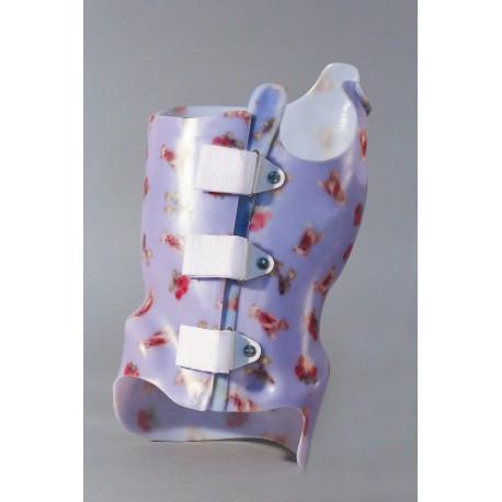 a kézízület gyulladása, mint a kezelésére lábujj-törés ízületi gyulladás