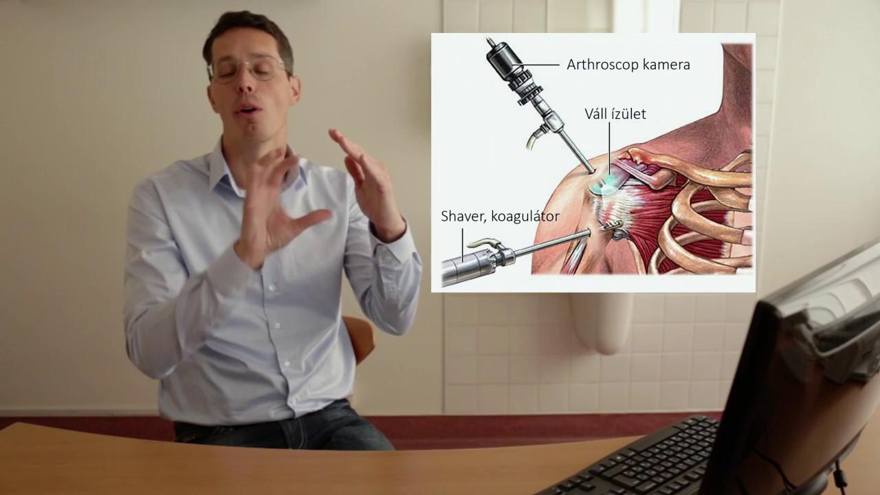 vállízület osteochondrosis hogyan kezelhető