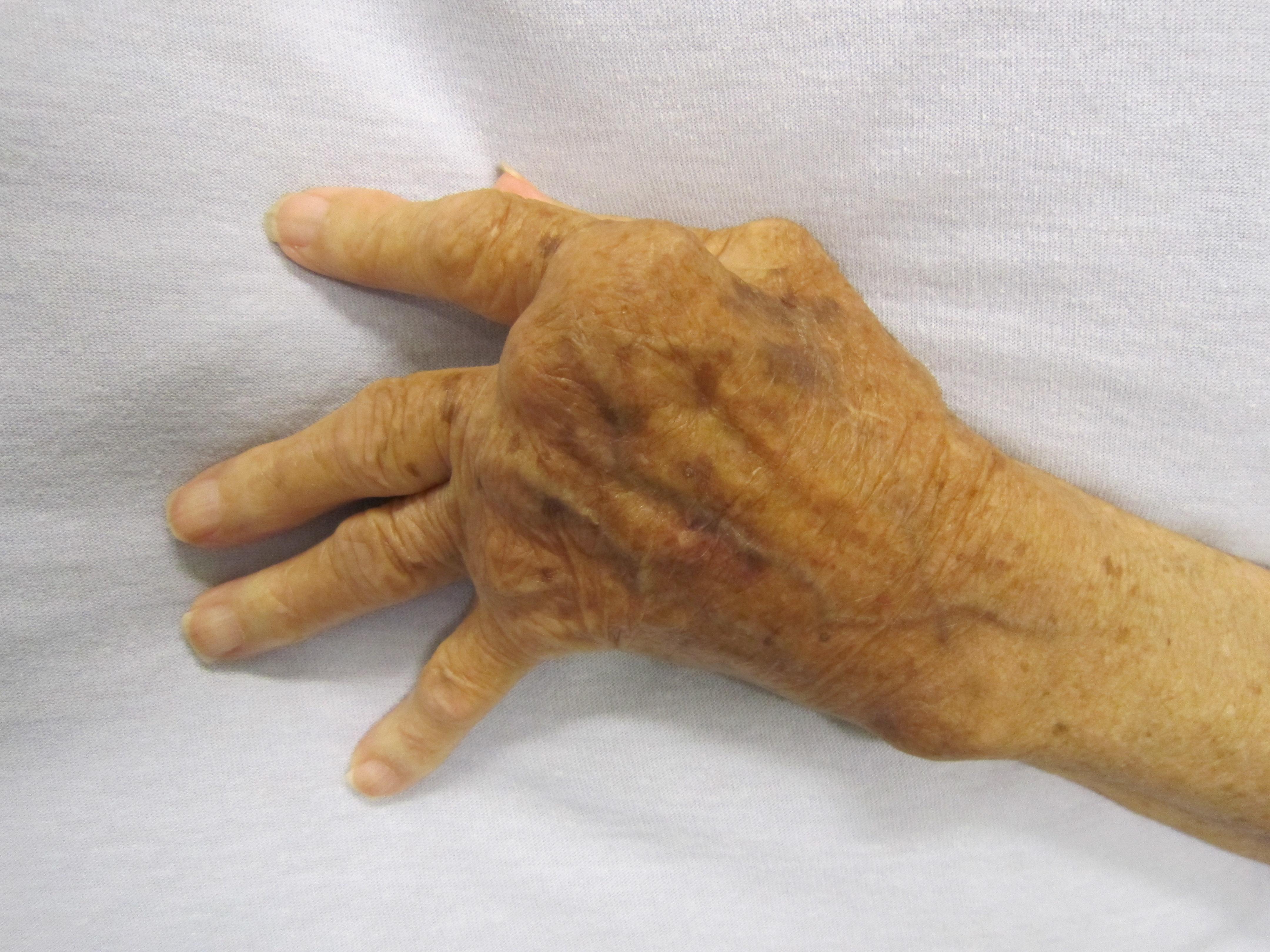 a jobb kéz ízületeinek gyulladása a vállízület latin gyulladása