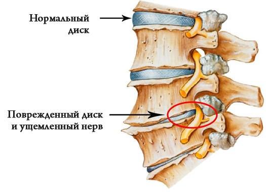 a csípőízület kezelésének deformáló osteochondroze