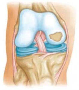 rheumatoid arthritis mi és hogyan kell kezelni