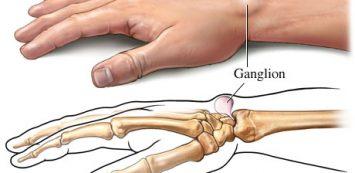 ízületi gyulladás fáj a karok és a lábak