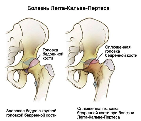 hatékony gyógymódok a boka osteoarthritis kezelésére fáj a farok ízületei