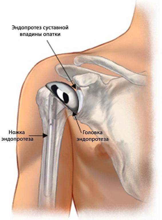 a vállízület második fokozatának osteochondrosis