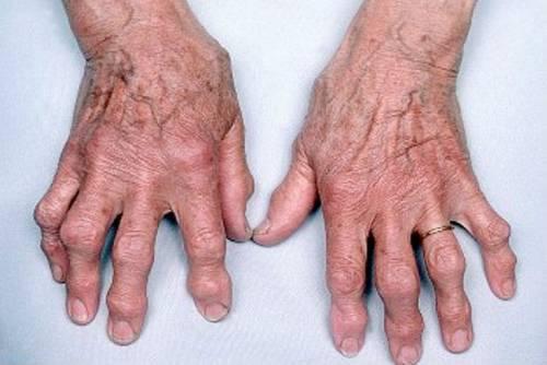 Az ujjak arthrosisának áttekintése: a betegség okai, tünetei és kezelése - Könyök