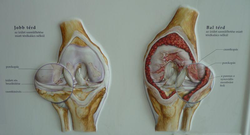 térdízületi fájdalom vagy injekciók