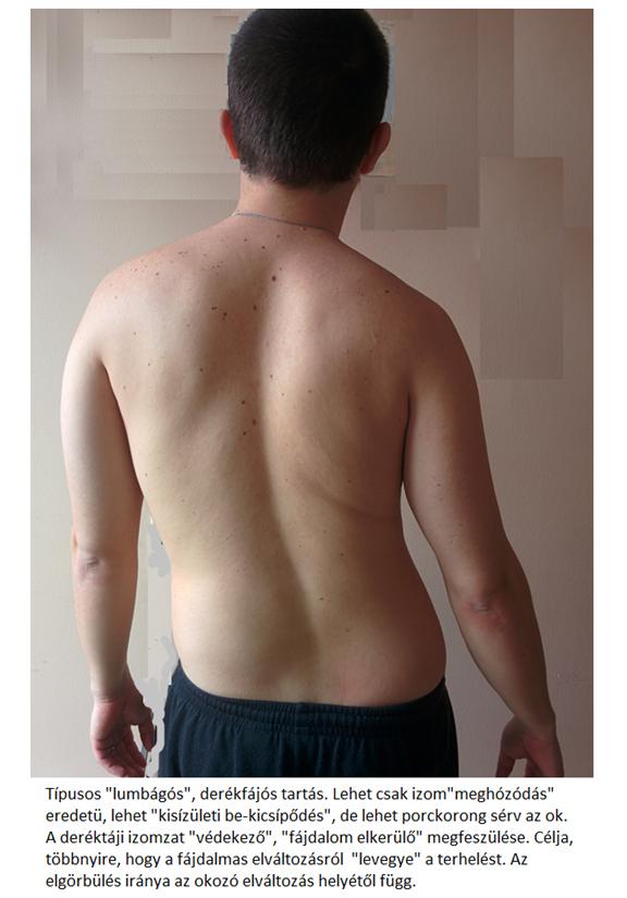 súlyos éles ízületi fájdalom erős gyógyszerek ízületi fájdalmak kezelésére