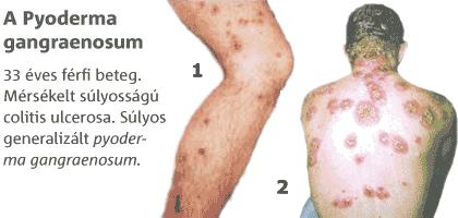 Crohn-betegség - Tünetek, kezelés, szövődmények