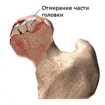Ha a csípőízület nagyon fáj. Fájdalom a csípőben