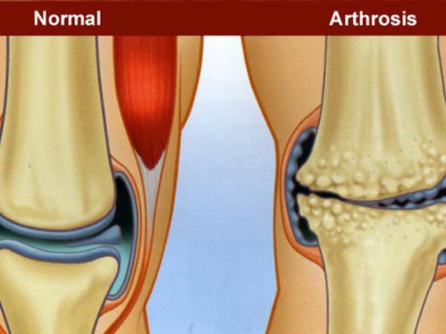 fájdalom a csípőízületben, gerinc oszteokondrozisával közös bővítés