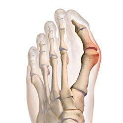 a csípő lábának fájdalma megszűnik kék lámpa ízületi kezelés
