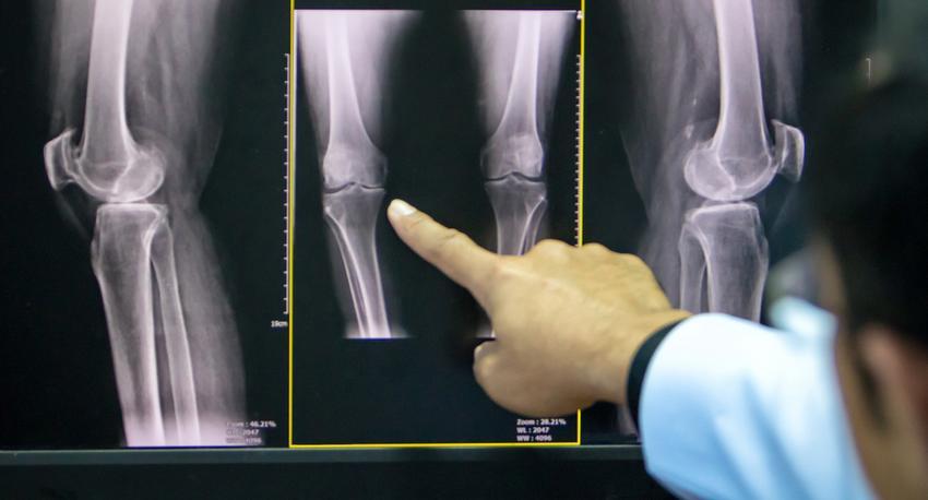 hogyan lehet bokaízületet kialakítani az artrózishoz kenőcs az ízületekből sérülés után
