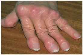 hogyan lehet enyhíteni a láb ízületeit