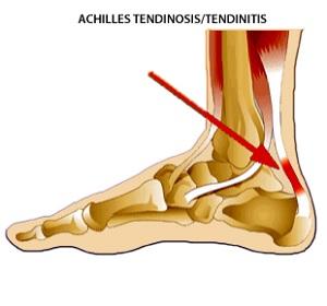 Melyek az Achilles-ín szakadás lelki okai?