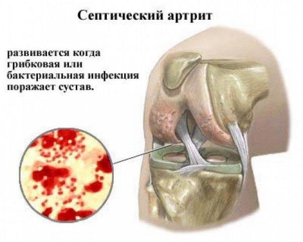 térdízület gonartrosisának kezelése 3 fokkal