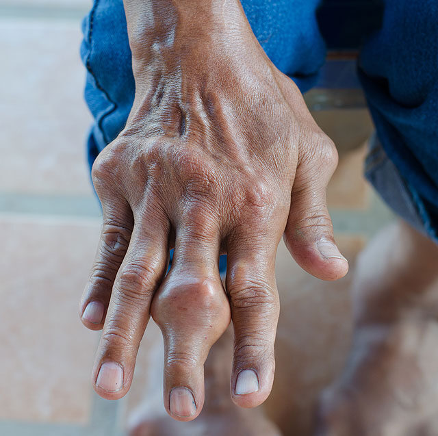 enyhíti az idősek ízületi fájdalmait
