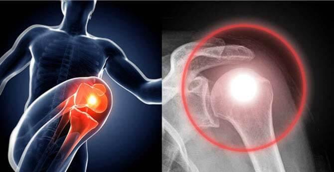 artrózis a térdben mi ez a kézízület ragasztásainak gyulladása