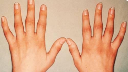 artrózis kezelése teraflex ízületi muskátli kezelés