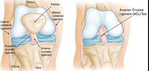 hogyan lehet csökkenteni a fájdalmat a térd artrózisával térdízületeknél