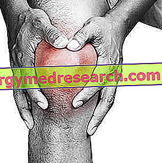 hogyan nyilvánul meg a térd artritisz