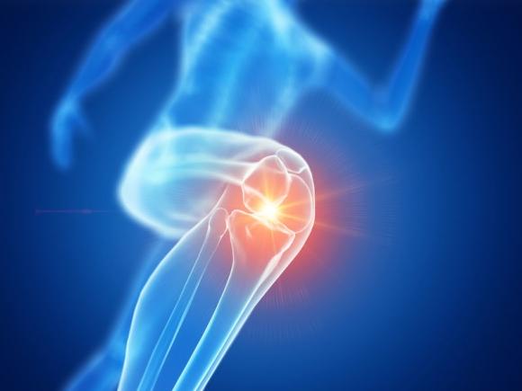 intraartikuláris készítmények artrózis kezelésére tabletták a térdgyulladás enyhítésére