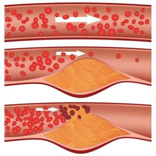 csípőízületi fájdalmak kezelése fájó lábízületek