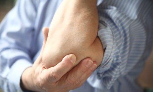 a könyökízületek fájdalmainak húzása