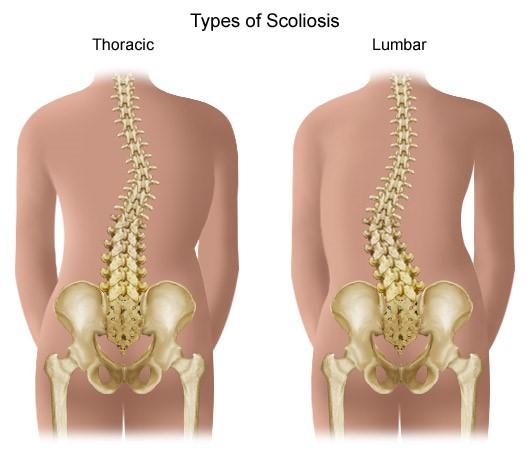 Mellkasi gerinc fájdalom - leírás és javasolt gyógykezelés
