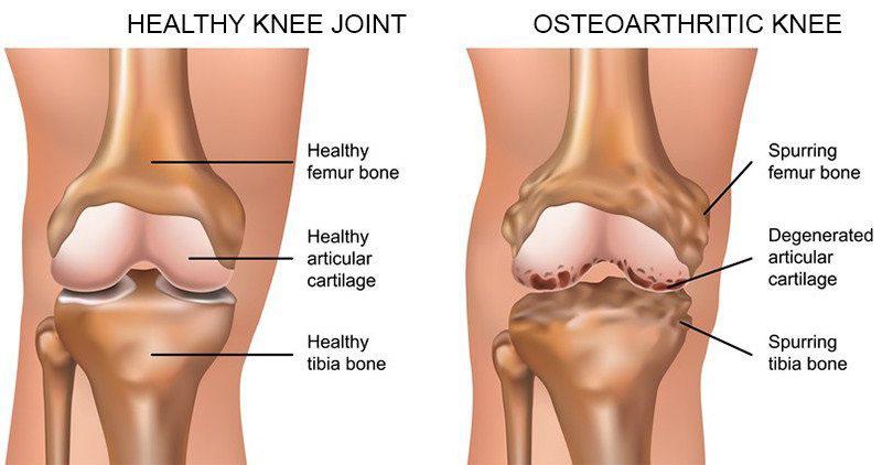 térd sérülést okoz csontok és ízületek károsodása